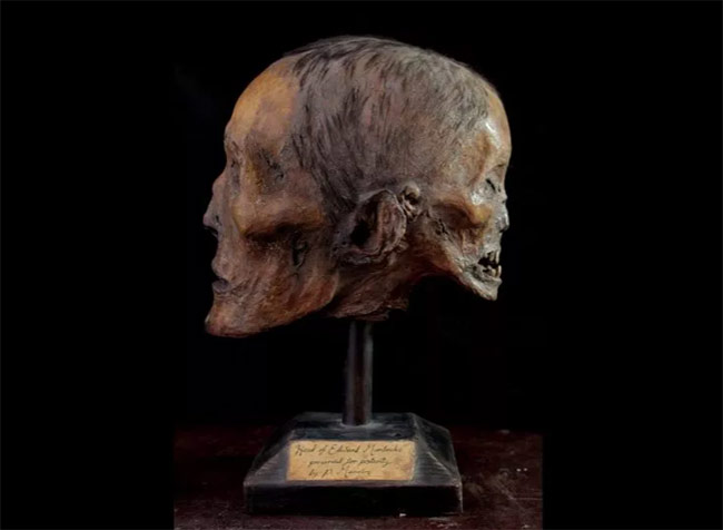 Edward Mordrake mummified head