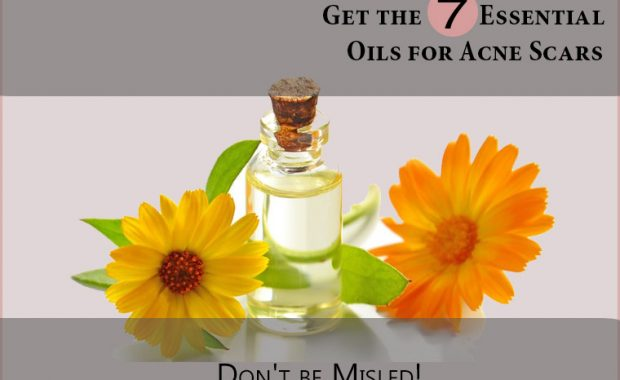 Essential-Oils-for-Acne-Scars
